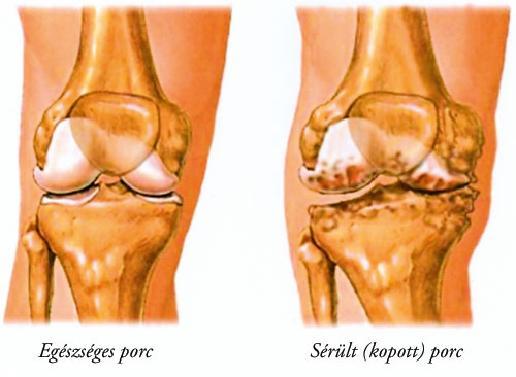 a térdízület kezelési fórumának poszt-traumás artrózisa
