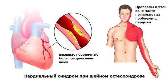 fájdalom a könyökízületben nyaki osteochondrozzal)