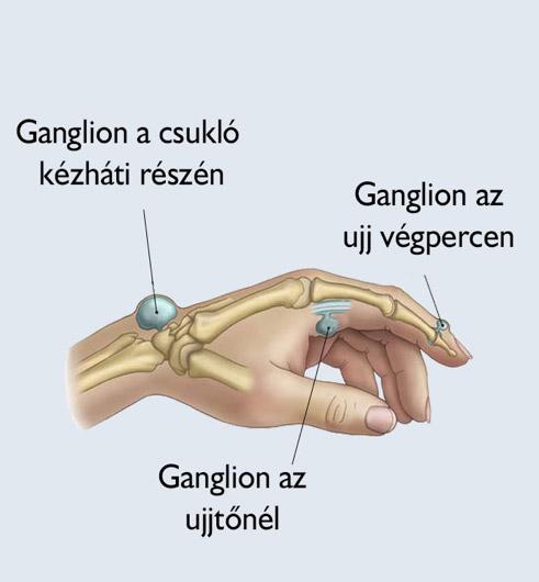 ízületi fistula kezelés)