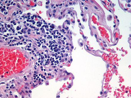 hogyan lehet kezelni az ízület artrózisának számát duzzadt mutatóujj ízületi fájdalom