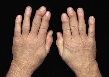 az 1. fokú vállízület artrózisának kezelése)