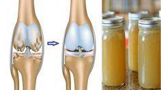 Csontok, ízületek, mozgás - Rossmann Online Drogéria