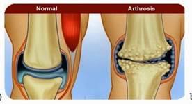 az artrózis kezelésének esetei