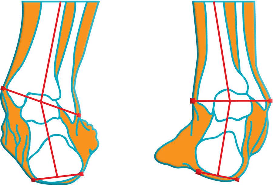 lábbetegség ízület