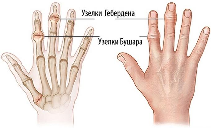 fájdalmak a kéz kis ujjainak ízületeiben