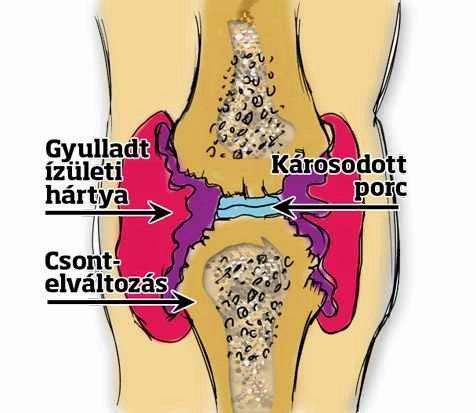 ízületi folyamat gyulladása)