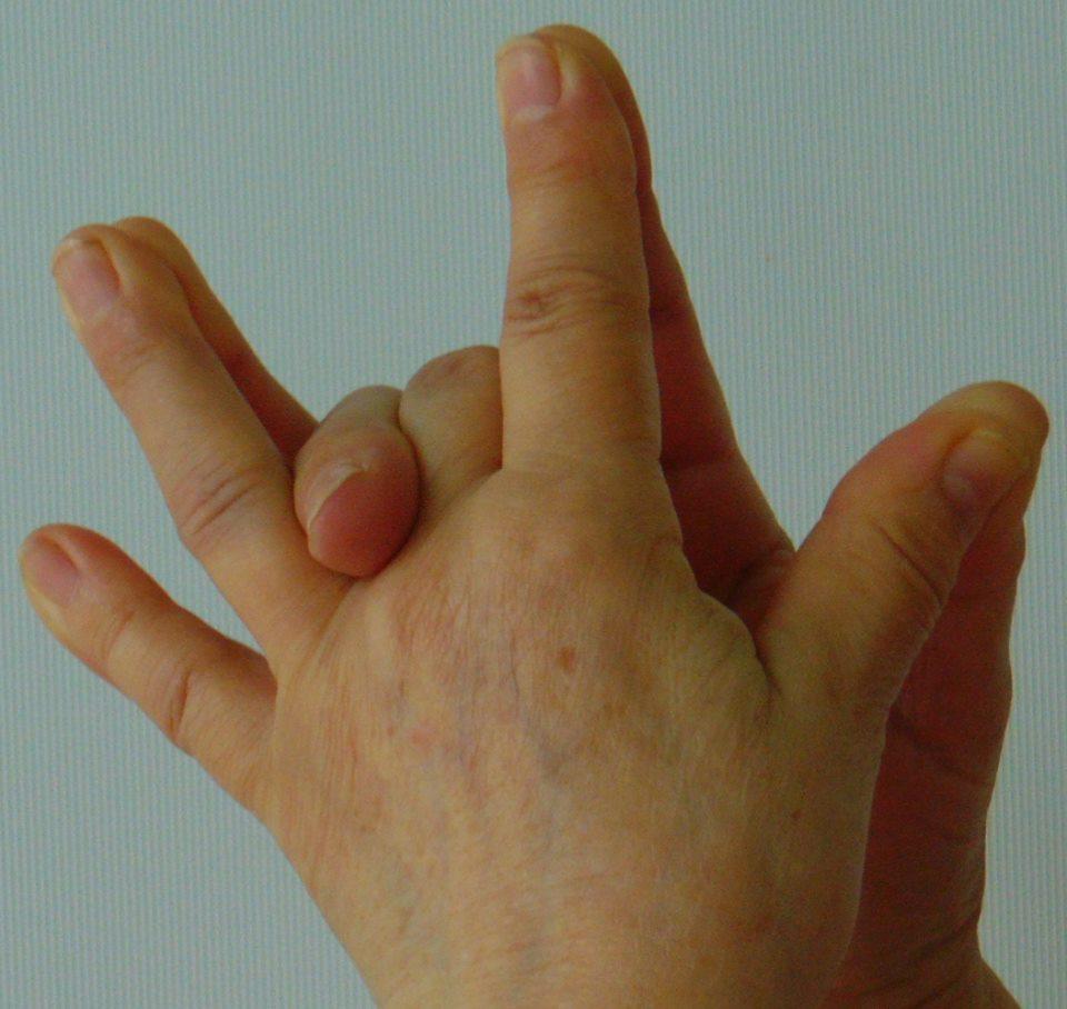 légzőgyakorlatok ízületi fájdalomra)