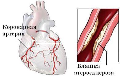 fájdalom a kar felső vállízületében