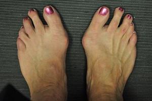 fájó ízület a nagy lábujj közelében