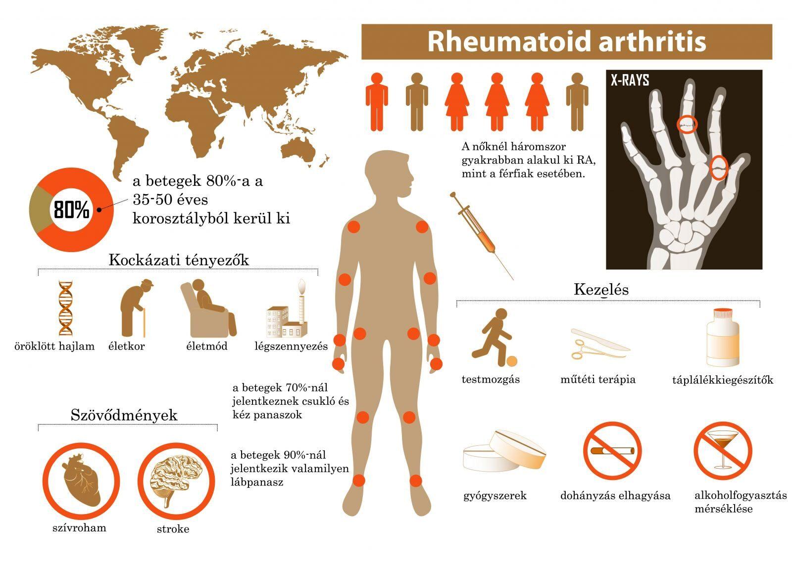 hogyan kezeljük a lábak rheumatoid arthritisét