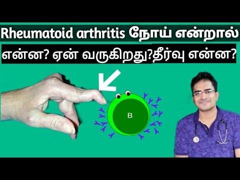 autoimmune betegség rheumatoid arthritis)