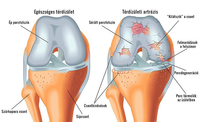 térdfájdalom súlyos hajlással