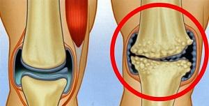 hogyan lehet kezelni az artrózist tromboflebitisz alatt