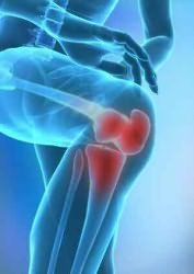 glükozamin a térd artrózisában