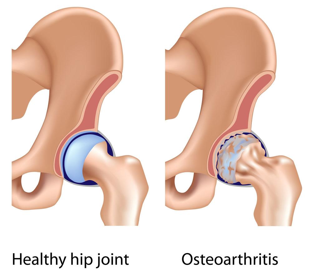 a csípőízület coxarthrosis ízületi gyulladásának okai
