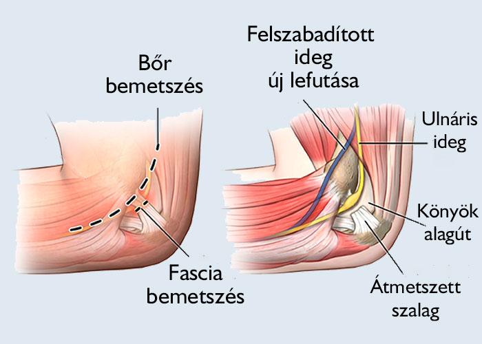 fájdalom súlyossága a karban a könyökízületben ízületi fájdalomkefe gondozás