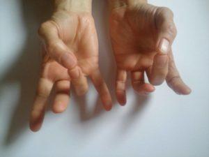 a gyűrűsujj ízületi fájdalma)