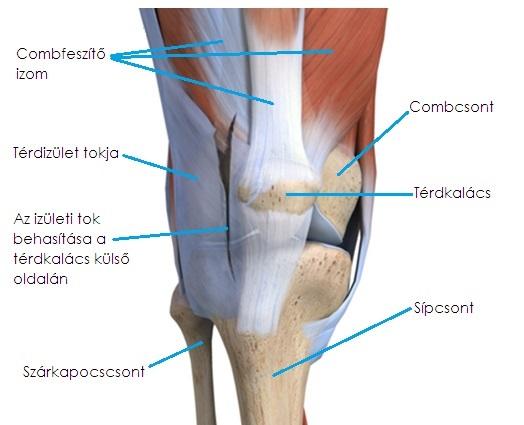 térd artrózis a sportolókban