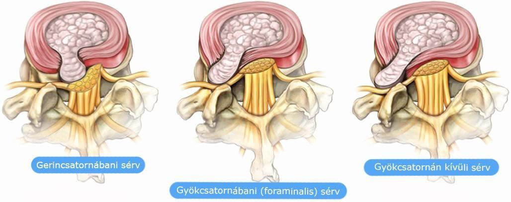 a csigolyák ízületeinek károsodása krémek és kenőcsök csontritkulás kezelésére