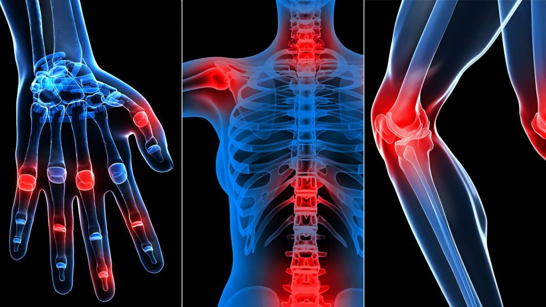 a csontok fájnak térdízületeket