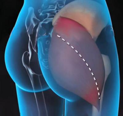 a csípőízület coxarthrosisának kezelésére szolgáló módszerek)
