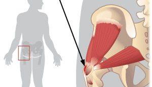 a csípőízület ízületi kezelése