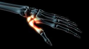 a hüvelykujj ízületi osteoarthrosisának kezelése