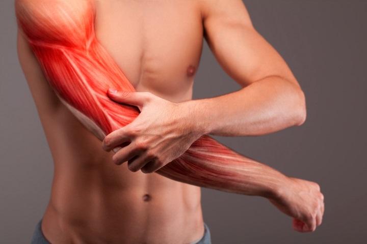 Edzés a szép karokért: integetőizom helyett feszes tricepsz - Dívány