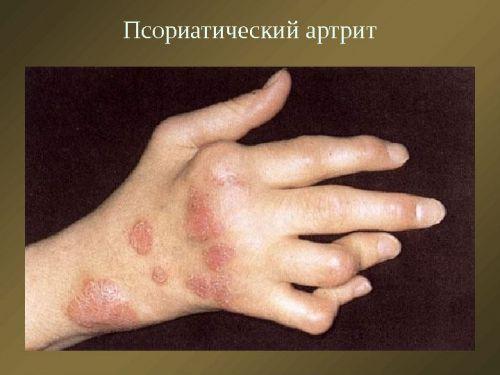 a kézízület sérülése)