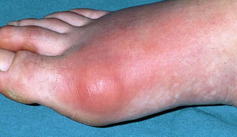 a lábujjak ízületi gyulladása vagy ízületi gyulladása)