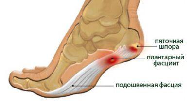 a lábízület fájdalmának kiküszöbölése