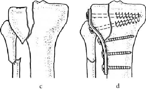a lábízület kezelésének megsemmisítése
