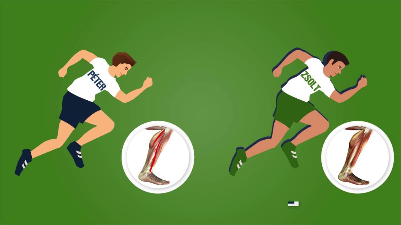 a lábízületek fájnak a futball után