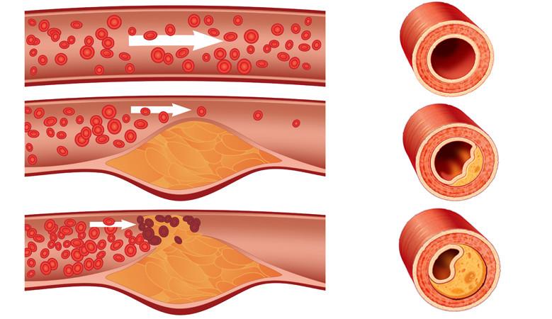 réz-szulfát ízületi kezelés hogyan lehet enyhíteni a csípőízület osteochondrosis fájdalmát