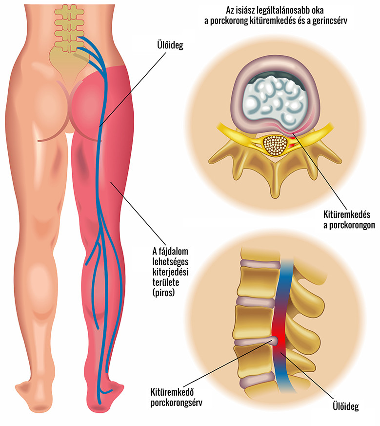 a sacroiliac ízületek gyulladása