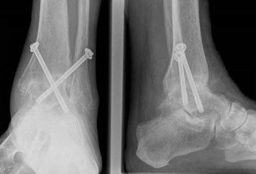 a subtalaris ízület posztraumás artrózisa)