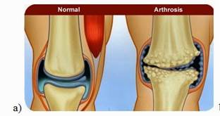 a térd artrózisa 2 fokos