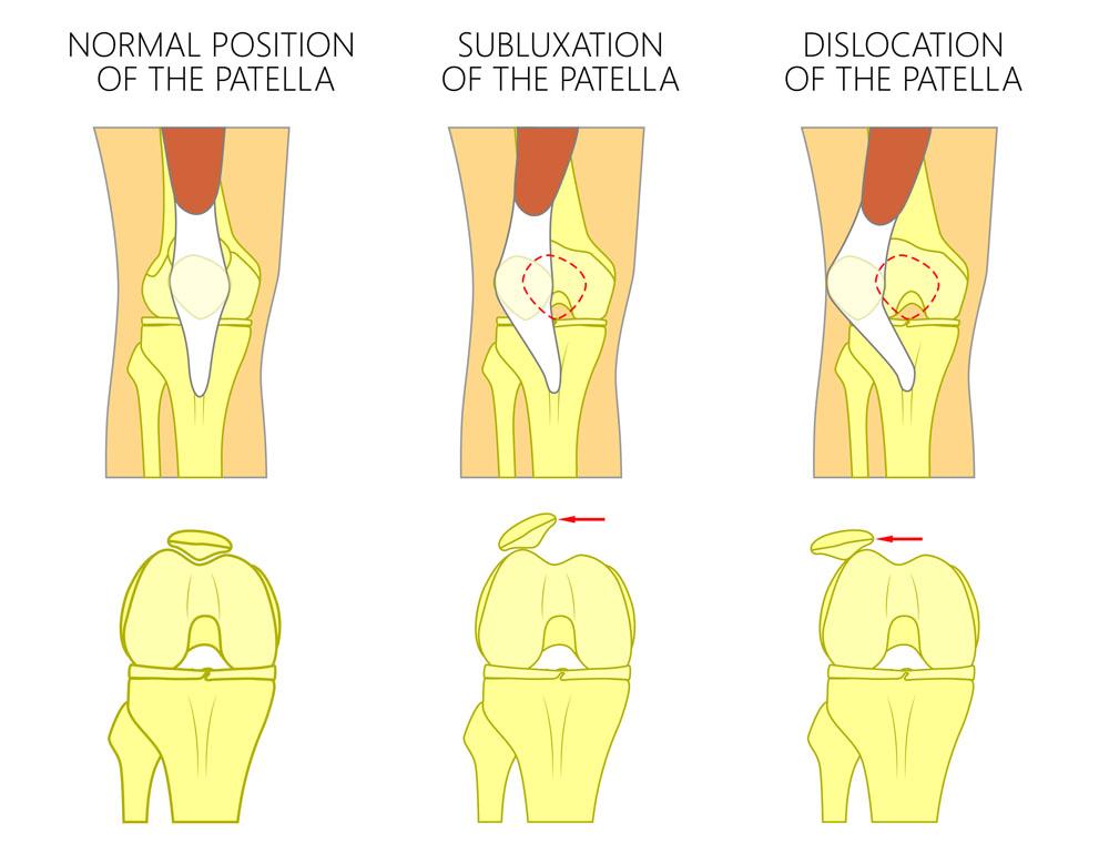 hialuronsav artrózis kezelésére