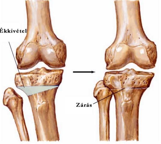 lábízületi műtéti kezelés ízületi károsodás gyakorisága psoriasis ízületi gyulladás esetén