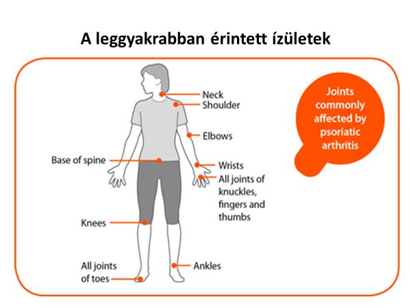 a térd psoriasis ízületi gyulladása)