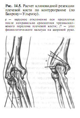a térdízület oldalsó ágának sérülése 1 fokkal)