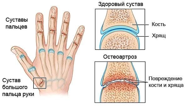 a vállízület kenőcsének artrózisa kezelésre)