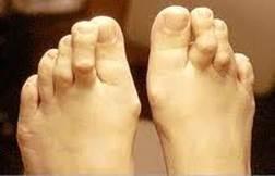a nagy lábujjak ízületeinek gyulladása chondroxidot és glükózamint tartalmazó készítmények