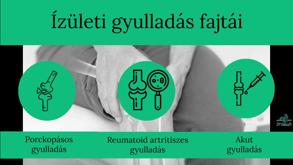 lágyszöveti ízületi kezelés köszvény betegség