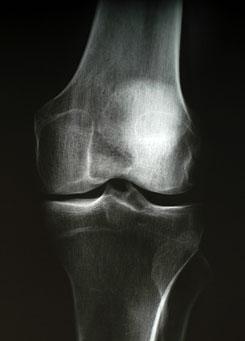 térd artrózisa 27 éves