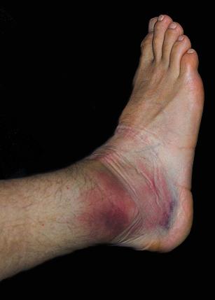 fájdalom a boka egy hónappal később