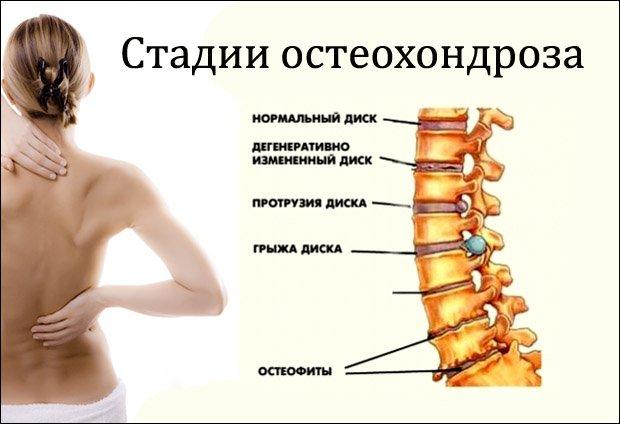 a láb artrózisa és kezelése hatékony osteochondrozis gél