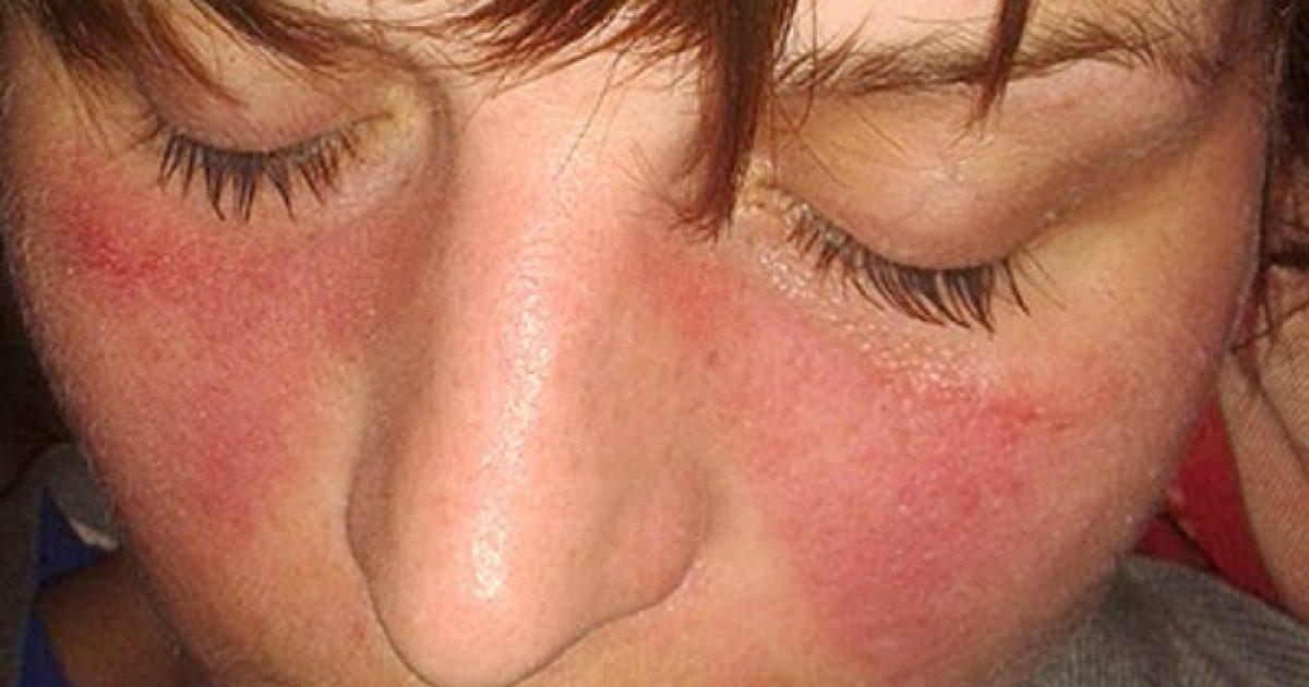 gyulladásos kötőszöveti betegség ízületi kezelés tushinóban
