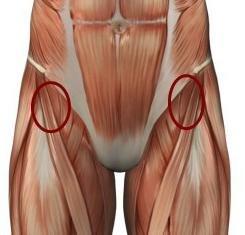 a csípőízület artrózisa súlyosbodásának okai