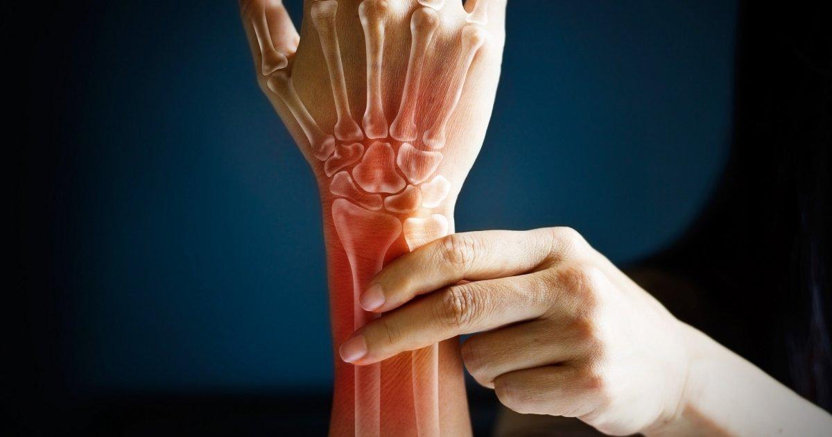 fáj a bal csuklóízület